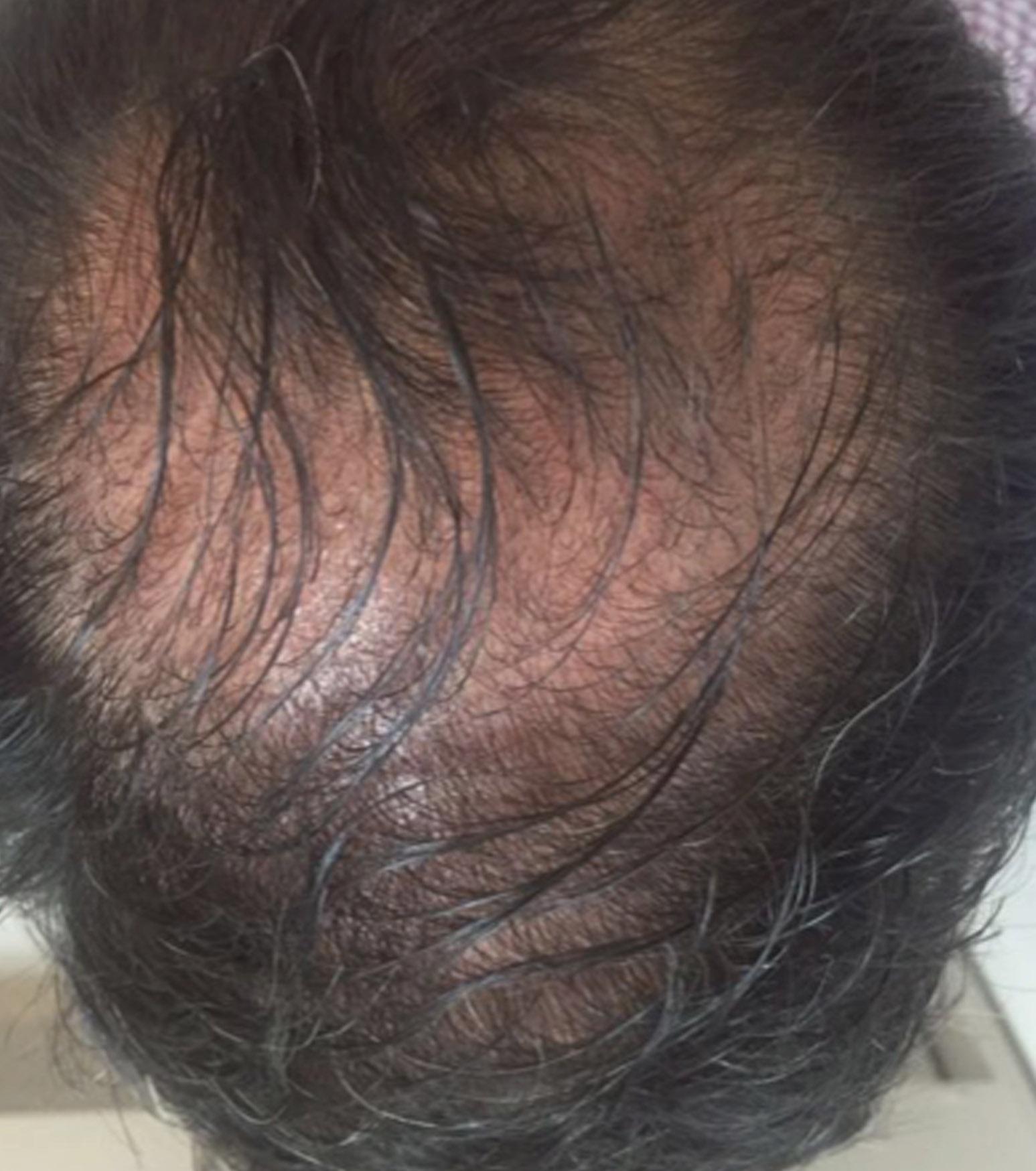wypadanie włosów łonowych u mężczyzn