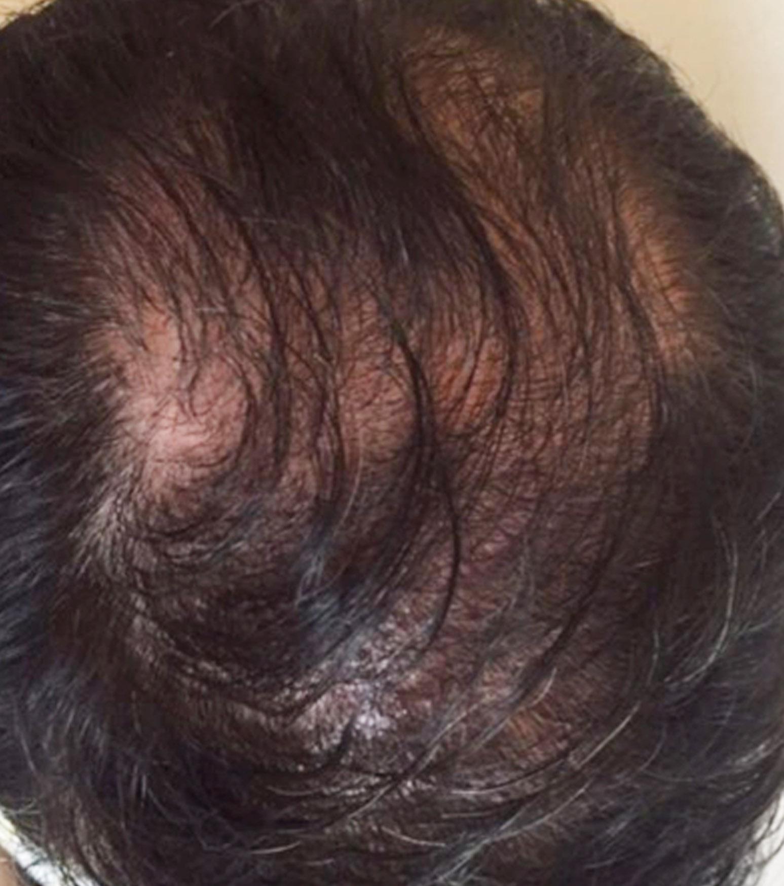 wypadanie włosów zwalczanie